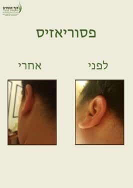 פסוריאזיס באוזן - לפני ואחרי | צוף צמחים - רפואה טבעית