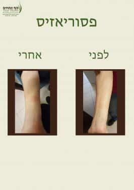 פסוריאזיס בידיים - לפני ואחרי | צוף צמחים - רפואה טבעית