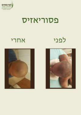 פסוריאזיס בקרקפת, בראש - לפני ואחרי | צוף צמחים - רפואה טבעית