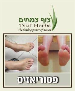 פסוריאזיס, טיפול בפסוריאזיס (ספחת), טיפול טבעי לפסוריאזיס | צוף צמחים - רפואה טבעי וצמחי מרפא