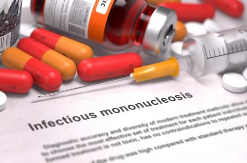מחלת הנשיקה טיפול טבעי, Mononucleosis EBV