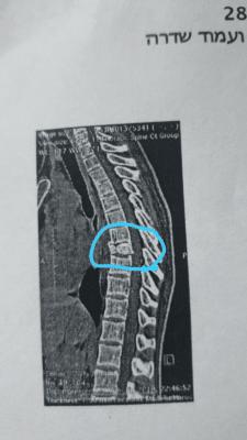 בעיות גב - שבר בחוליה, טיפול טבעי backpain treatment | צוף צמחים