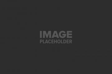 פסוריאזיס – לפני ואחרי